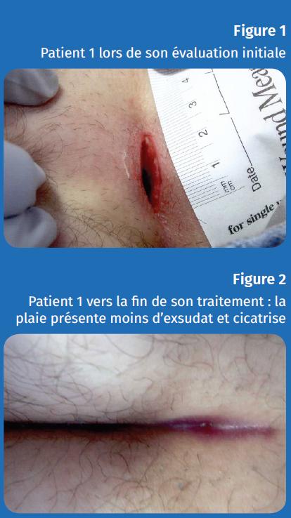 Figure 1 et 2 patient 1