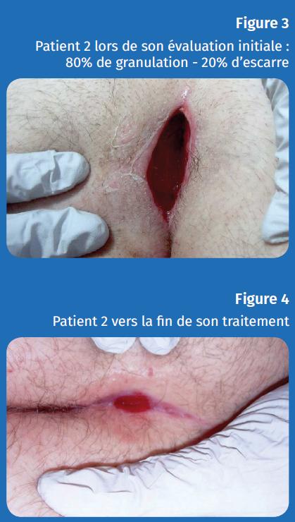 Figure 3 et 4 patient 2