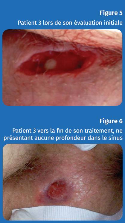 Figure 5 et 6 patient 3